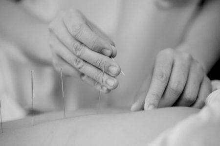 donde hacer acupuntura en albacete copia